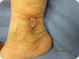 Venous Ulcer, Memorial Vein Center