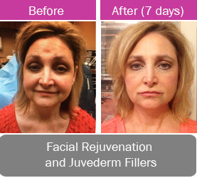 Facial rejuvenation with laser and juvederm fillers.