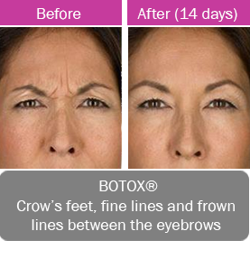BOTOX, crows feet, fine lines and frown lines between the eyebrows.