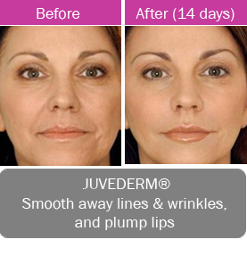 Juvederm, smooth away fine lines and wrinkles and plump lips.